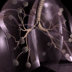 Asbestos Impact on Lungs
